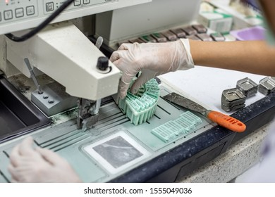 Pathological officers are preparing a biopsy for diagnosis by a pathologist.