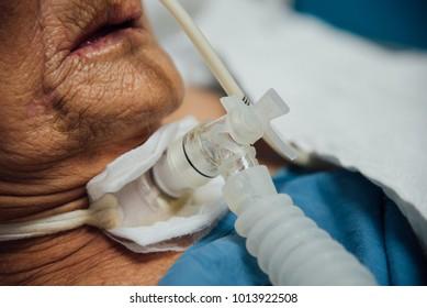 Patient asiatische ältere Frauen 80er Jahre verwenden Tracheostomy Beatmungsgerät für Atemhilfe im Bett im Krankenhaus.