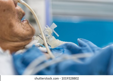 Patient asian elder women 80s do tracheostomy use ventilator for breathing help on bed in the hospital.