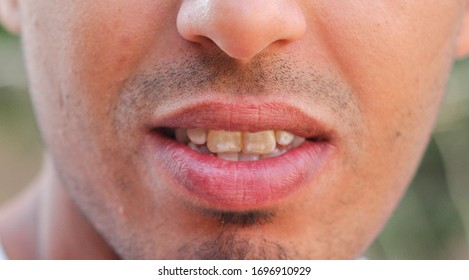 patient before prophylactic treatment, dirty  teeth. Bad teeth.