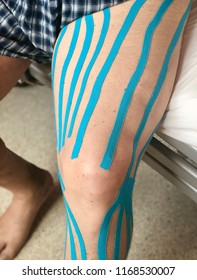 Patient with blue kinesiology tapes applied to his leg. The tapes are used by physical therapists to relieve muscle tensions and reduce swelling of patient's leg.