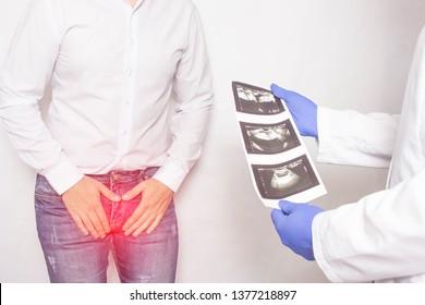 tipi di prostatite camera system