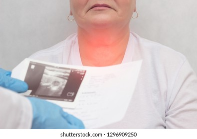 Patient at a doctor with a thyroid disease of the nodular goiter, close-up, medical, inflammation