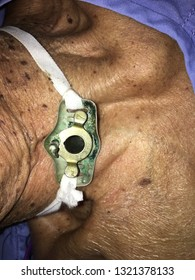 Patient elder with steel tracheostomy tube.