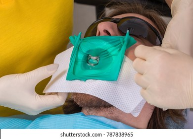 Patient getting dental treatment at dentist office with dental rubber dam protection and smart matrix system clamp, preventing saliva contamination. Dental care, tools and technology concept.