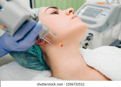 Patient getting laser mole removal. skin moles treatment.