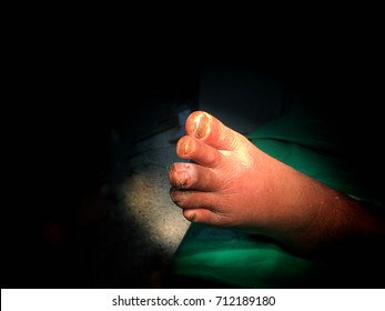 Patient has ulcer at foot/dry skin/chronic wound/toes have fungi /wait for cleaning the wound/light focus at foot