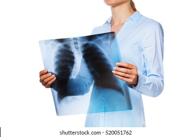 Patient hold her lunges X-ray with focus on chest