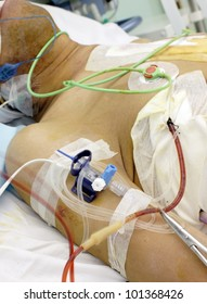 patient in the ICU. Seriously ill in bed with various tubes and medical devices