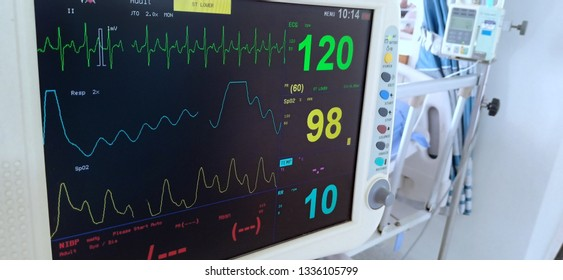 Patient monitor displays vital signs ECG electrocardiogram EKG, oxygen saturation SPO2 and respiration.
