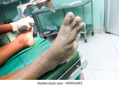 patient on the bed , right foot cut toe ,foot deformed