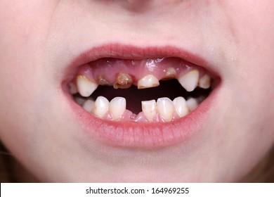 Rotten Teeth Images, Stock Photos & Vectors | Shutterstock