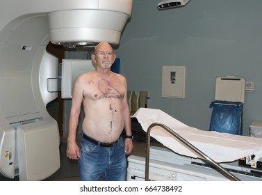 Patient Radiation therapy laser markings lines for targeting cancer cells in the Chest