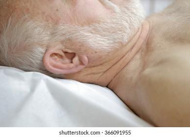 Patient receiving acupuncture needles.