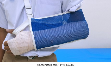 Patient 's broken bone treatment by orthopedic arm cast and arm sling. Plaster cast and slab is device used to immobilize, stabilize and support fracture.  Medical stabilizer and equipment concept