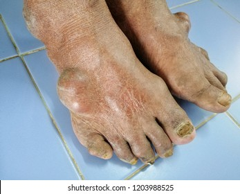 Patient swelling gout of foot leg and medical diagnosis deformity rheumatoid arthritis disease. Close up Painful and inflamed gout.