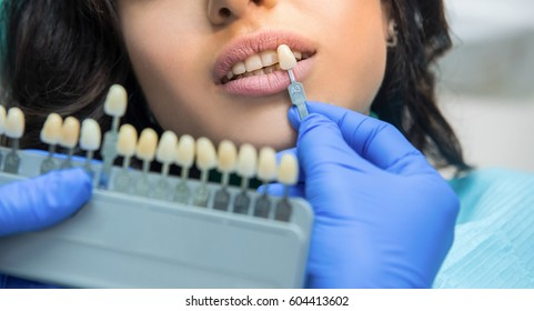 Tooth Colour Chart Images Stock Photos Vectors Shutterstock