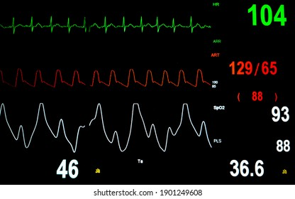Patient vital sign monitor display in the intensive care unit.