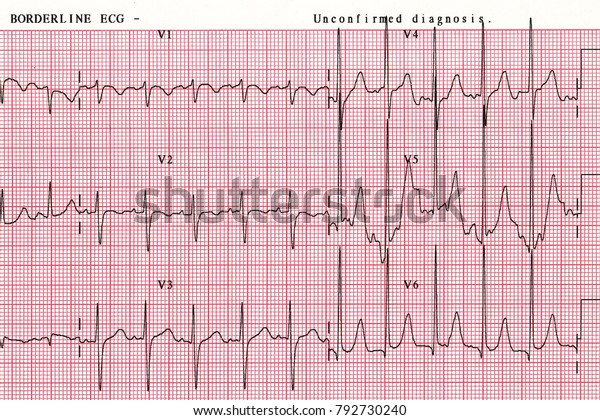 Patients Heart Wave Chart Which Tool Stock Photo (Edit Now) 792730240