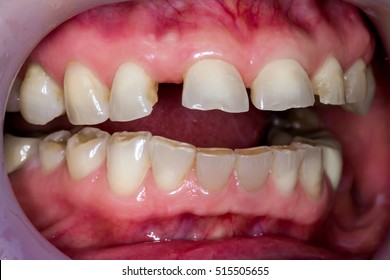 Patient's mouth before entire dental treatment and changes