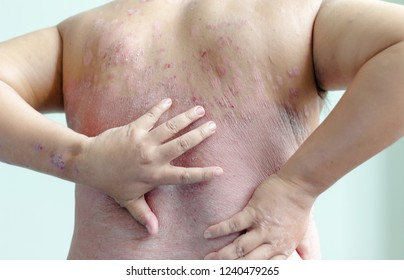 Patients are scratching their own back, full of wounds. Diseases caused by abnormalities of the lymph. Psoriasis is a skin disease. Select focus shallow depth of field and blurred background