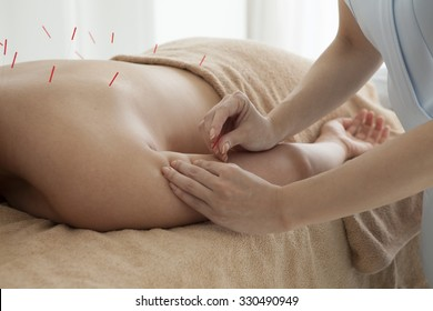 Patients undergoing acupuncture on the body in the salon