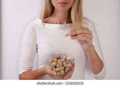 Peanut Food allergy symptoms rush, itching, skin redness.