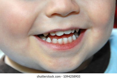 Pearl colored baby teeth grace the smile on this little toddler.  Closeup shows teeth, chin and mouth.