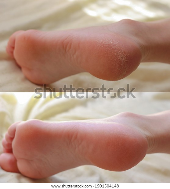 Pedicure. Cracks and dry callus on the heels. Sloppy and groomed legs. Lack of vitamins. Skin diseases feet. Before and after treatment.