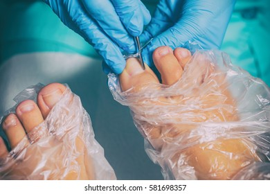 Peeling during a pedicure