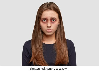 People and beat concept. Bruised dark haired young woman being victim of violent man, looks desperately at camera, dressed in black sweater, isolated over white background. Violence in family