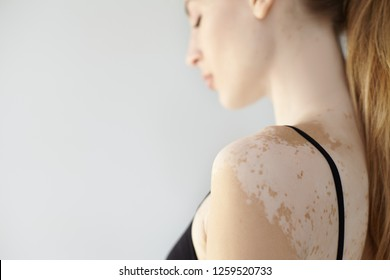 People, dermatology, cosmetology and skin condition concept. Side view of attractive young Caucasian female wearing black bra showing white vitiligo spots. Selective focus on woman's shoulder