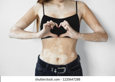 People, lifestyle, different beauty standards, self-love and happiness concept. Cropped view of unrecognizable young woman with pale vitiligo spots making heart shape hand gesture as sign of love