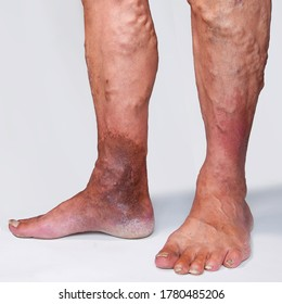 """People suffering from varicose veins often come to the phlebologists office, too late - at the moment when visible signs have already appeared on their legs: swelling, swollen veins, """"stars""""."""