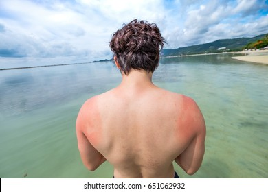 A perfect body man with sunburn skin at the Beach  ,reddened, itchy skin after sunburn. Skin care and protection from the sun's ultraviolet rays.