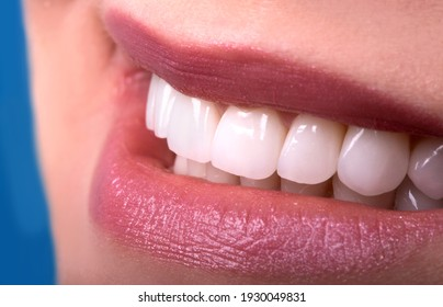 Perfect Close Up Sensual sexy Seductive Plump Lips woman smile . White beautiful Teeth bleaching ceramic crowns whitening young lady smiling. Dental zircon implants restoration surgery Fashion concept