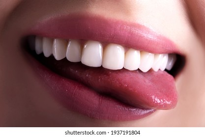 Perfect Close Up White beautiful Veneers Teeth bleaching crowns whitening young lady smiling, Sensual sexy Seductive plump Lips woman smile. Dental zircon implants restoration surgery. Fashion concept