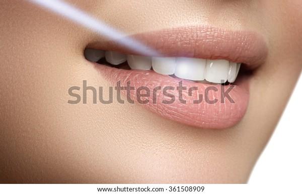 Perfektes Lächeln nach dem Bleichen. Zahnpflege und weißende Zähne. Laser-Zähne-Witterung