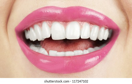 Perfect smile of beautiful woman with great healthy white teeth.