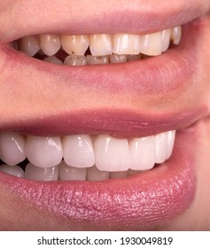 Perfect smile before and after bleaching procedure whitening of zircon arch ceramic prothesis Implants crowns. Dental restoration treatment clinic patient. Result of oral surgery dentistry,