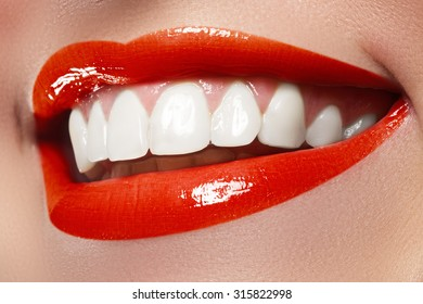 Perfect smile before and after bleaching. Dental care and whitening teeth