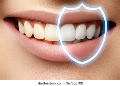Perfect smile before and after bleaching. Dental care and whitening teeth. Stomatology and beauty care. Woman smiling with great teeth. Cheerful female smile with fresh clear skin