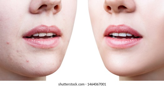 Perfect woman's lips before and after retouch. Over white background.
