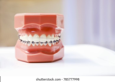 Perfectly straight teeth. Jaw model, close up. Braces on the teeth.
