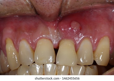 periodontal abscesses on labial gingiva of  left maxillary central incisor