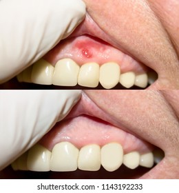 Periodontitis. Inflammatory process in the gum area. The doctor examines the oral cavity. Preliminary examination of the dentist. Lower photo, after treatment.