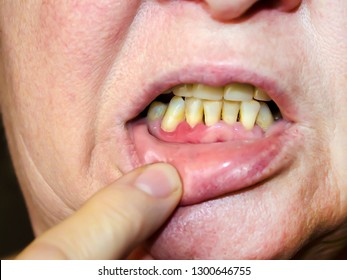 Periodontitis The inflammatory process in the gum area. Exposure of the necks of the teeth. The doctor examines the oral cavity. Preliminary examination by a dentist.