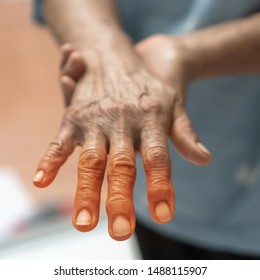 Peripheral Neuropathy pain, Guillain Barre syndrome GBS in elderly patient on hand, finger and sensory nerves with numb, aching, muscle weakness from chronic inflammatory demyelinating polyneuropathy