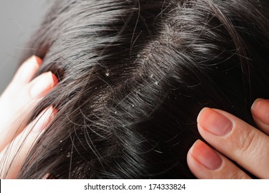 Persistent dandruff issue - flaky scalp