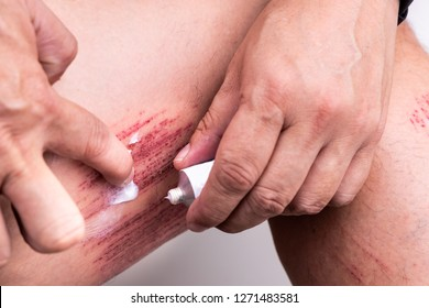 Person applying white antiseptic cream onto painful wound from abrasive fall